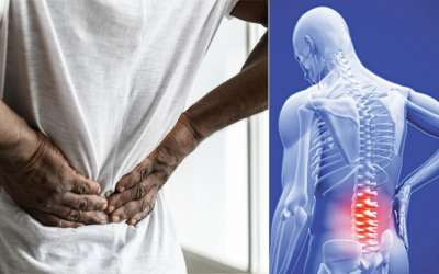 Križobolja ili lumbalni bolni sindrom (1)