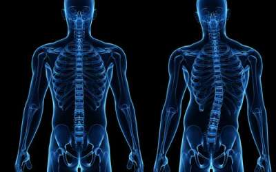 Liječenje skolioze