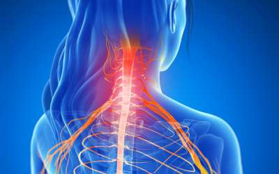 Hernija diska vratne kralježnice