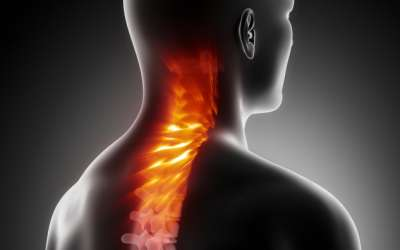 Problemi vratne kralježnice (1. dio)