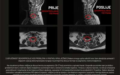 Uspješnost dekompresije kod problema u vratnoj kralježnici